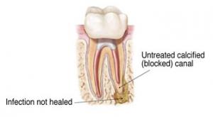 Endodontic Retreatment 1