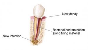 Endodontic Retreatment 2