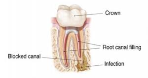 Endodontic Retreatment 3