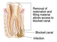 Endodontic Retreatment 4