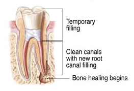 Endodontic Retreatment 5