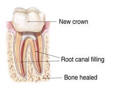 Endodontic Retreatment 6