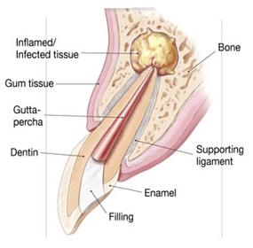 Endodontic Surgery One
